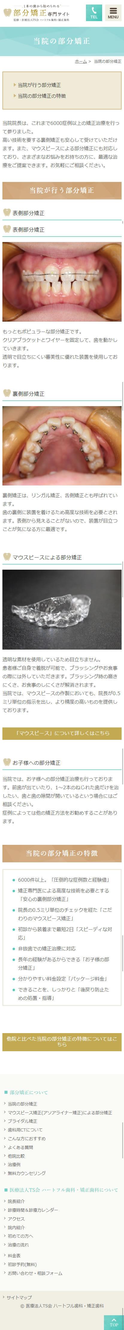 大阪市 ハートフル歯科・矯正歯科 部分矯正サイト ホームページ制作4